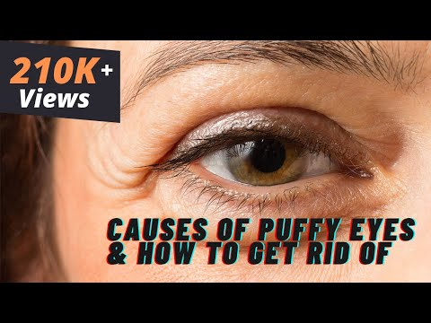 What Causes Puffy Eyes & How to Get Rid of it | Cosmetic Expert Dr. Debraj Shome Explains