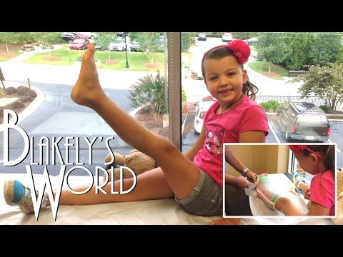 Blakely's Broken Leg   Cast Removal!