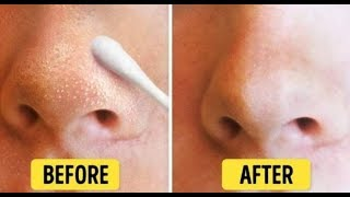 Get Rid Of Your Whiteheads Naturally On Your Face Nose