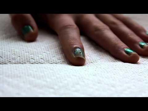 Fingernail blood blister remedy