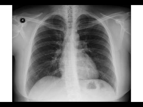 Chest xray - Pneumonia, tumor or something else