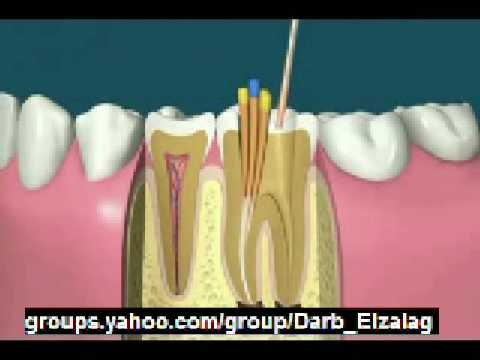how to do root canal treatment