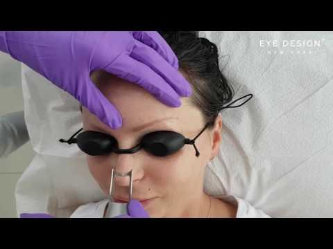 Eyebrow tattoo laser removal | Eye Design New York
