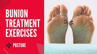 How To Treat Bunions Part 1
