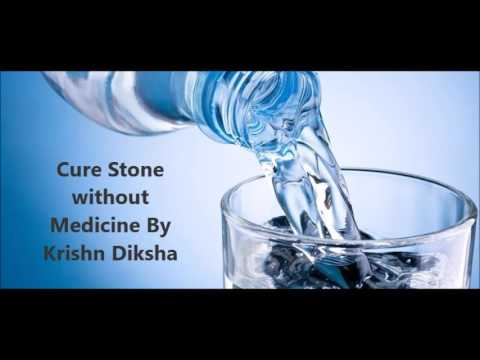 Cure Stone without Medicine By Krishn Diksha
