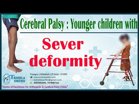 Cerebral Palsy : Younger children with Sever deformity