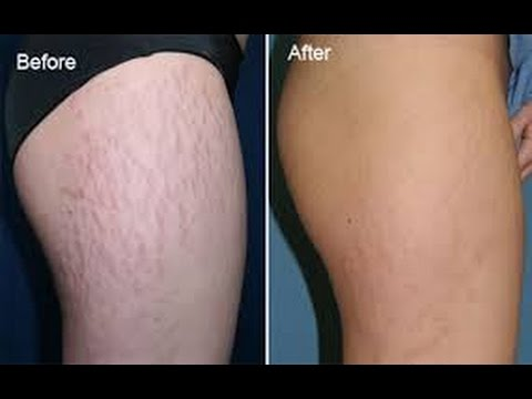 GET RID OF STRETCH MARKS IN 7 Days l LifeWithBelle