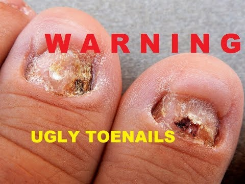 🤢UGLY TOE NAIL  Transformation ! ------ FIX THEM w/ DUAL FORMS  & ACRYLIC --- SEE HOW