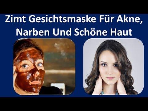 Zimt Gesichtsmaske für Akne, Narben und schöne Haut