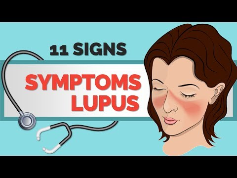11 Signs and Symptoms of Lupus - Lupus Symptoms