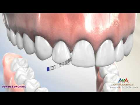 Interproximal Reduction (IPR) by Polishing Strip - Orthodontic Treatment