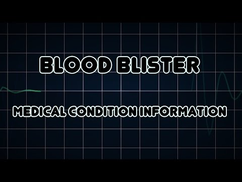 Blood blister (Medical Condition)