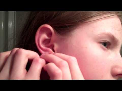 Quick Video: How to Put on Claire's Ear Care Solution!!