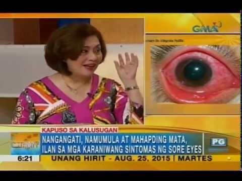 Simple ways to avoid having sore eyes | Unang Hirit
