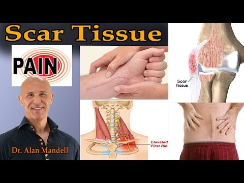 Your Chronic Pain May Actually Be Scar Tissue - Dr Mandell
