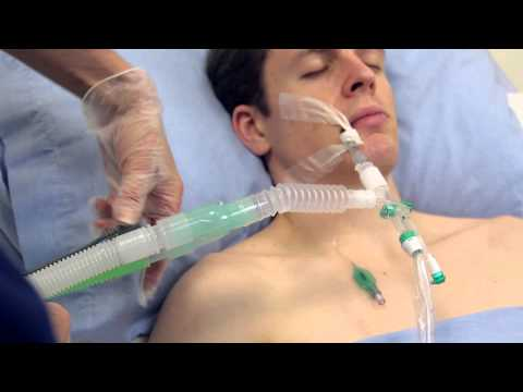 Using Intersurgical's TrachSeal™ closed suction systems
