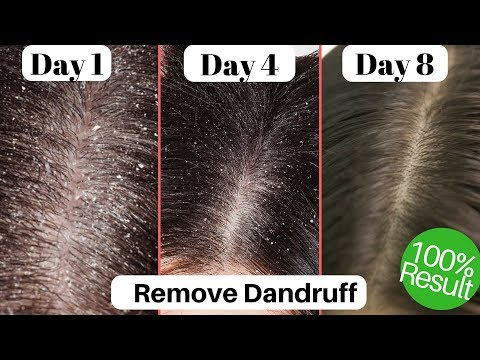 Dandruff treatment in Hindi   Homemade anti DANDRUFF HAIR OIL   Hair hacks   AVNI