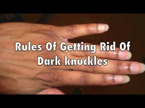 How to Lighten Knuckles Naturally + Tips on How to Get Rid Of Dark Knuckles