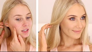 How To Cover Acneblemishes