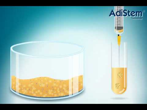 Stem Cell treatment - overview of procedure
