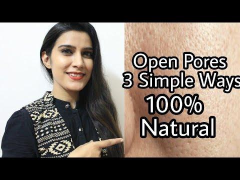 खुले रोम छिद्रों को कैसे बंद करें ?? Open Pores Treatment at home | 100% Natural Effective |