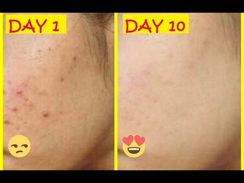 How to Remove PIMPLES Overnight   Remove Pimple Marks from Face Naturally
