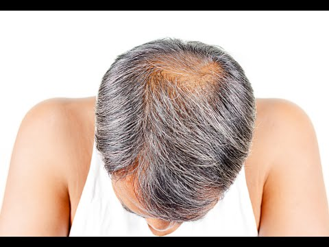 How to Stop Baldness and Regrow Hair Naturally - Fast Hair Loss Treatment