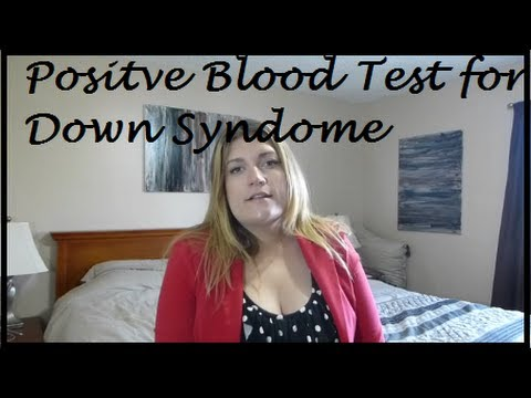 Positive Blood Test for Down Syndrome