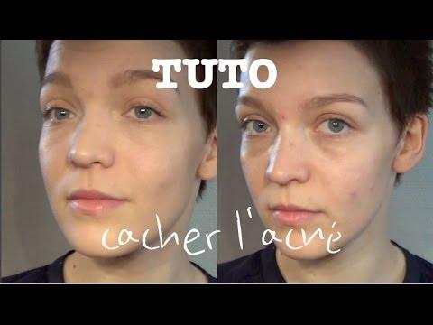 Comment cacher les taches du visage et l'acné