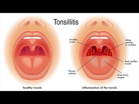 2 Best Home Remedies for Swollen Tonsils l Health & Fitness