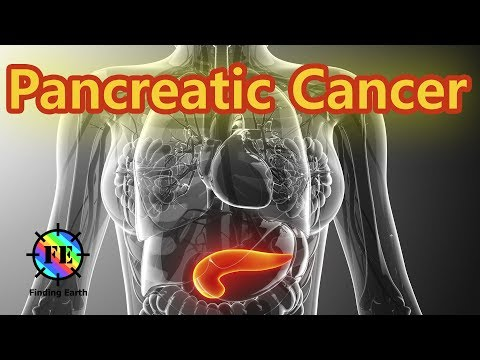 Pancreatic Cancer - Symptom, Causes & Diagnosis