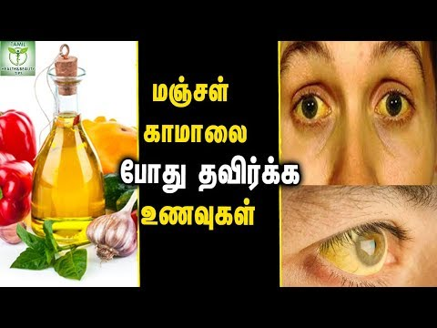 Foods To Avoid During Jaundice - Health tips In Tamil