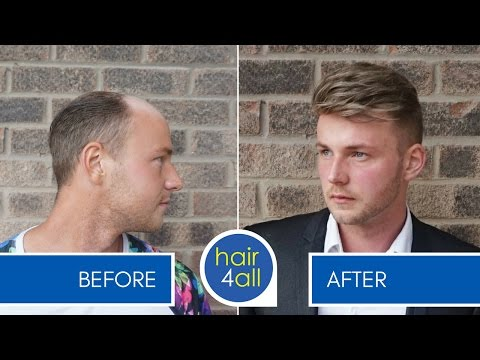 How to Swim, Shower & Exercise with a Non-Surgical Hair Replacement System for Men/Harris Brothers