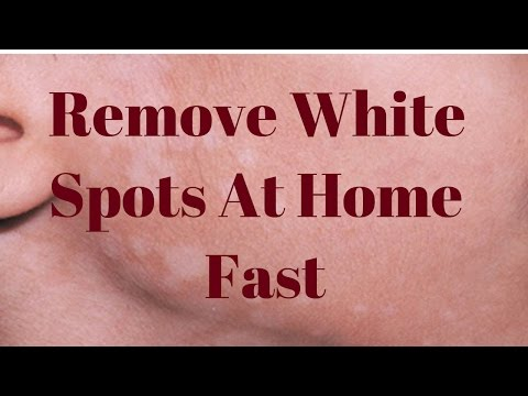 Remove White Spots On Face Only 3 Remedies