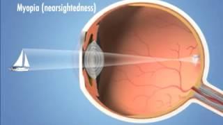 Four Main Types of Refractive Error (vision problems) - Eye Associates