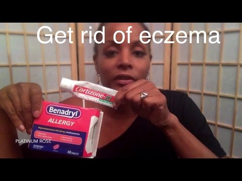 How to get rid of eczema (skin and scalp) part 1 pt 1 of 2 Natural Hair #naturalhair