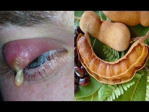 आँखों की गुहेरी जड़ से मिटाने का उपचार  | How To Get Rid Of Eye Stye