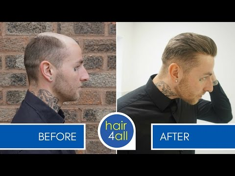 How to Make (Create) a Non-Surgical Hair Replacement Template for Men/Women with The Harris Brothers