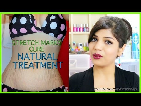 How To Get Rid Of Stretch marks At Home | SuperPrincessjo