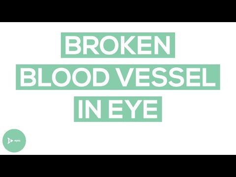 Understanding the Broken Blood Vessel in the Eye (Subconjunctival Hemorrhage)