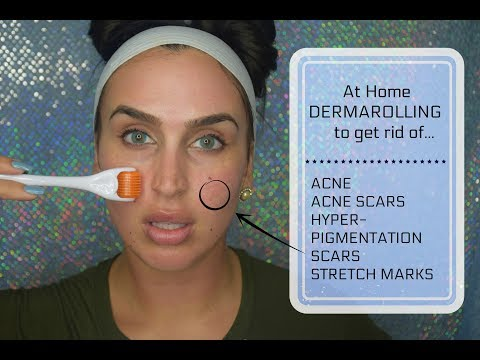 At home DERMAROLLING to get rid of ACNE, ACNE SCARS, HYPER-PIGMENTATION, and SCARS