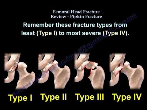 Femoral Head Fracture Review, Pipken Fracture - Everything You Need To Know - Dr. Nabil Ebraheim
