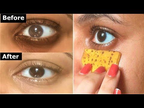 i Rubbed Banana Peel around Eyes Daily, 3 DAYS later No Dark Circles No Eye bags Remove DARK CIRCLES