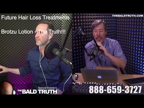 The Bald Truth - April 24th, 2018 - Brotzu Lotion, Propecia, and More.