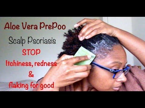 Aloe Vera Pre Poo | Soothe Scalp Psoriasis | Naturally Sunny