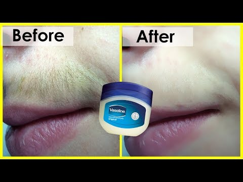 Permanently Remove Unwanted Hair In Just 5 Minutes | The Hair will never grow again
