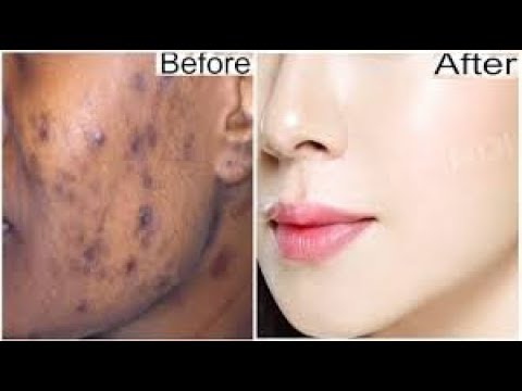 IN 5 DAYS REMOVE DARK SPOTS BLACK SPOTS & ACNE SCARS WITH THIS CREAM GET 100% SPOTLESS SKIN