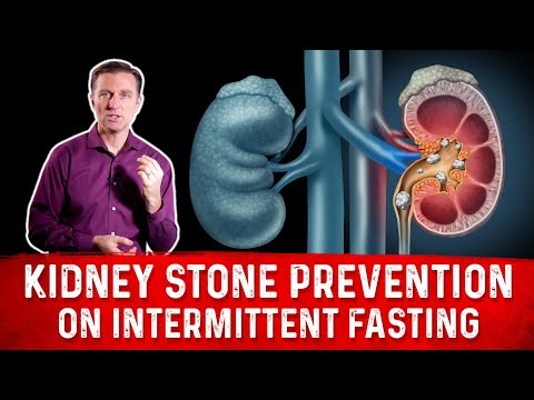 Kidney Stone Prevention on Intermittent Fasting (IF you are susceptible)