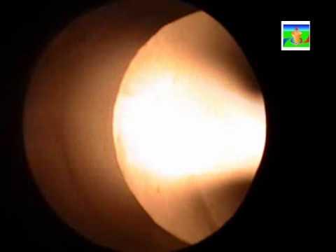 Vortex combustion chamber