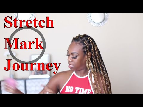 How I Faded My Stretch Marks! | At Home ‼️